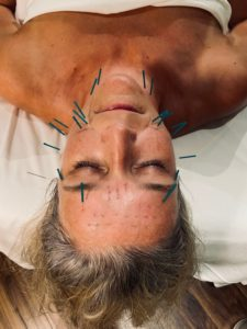 facial Rejuvenation acupuncture in progress